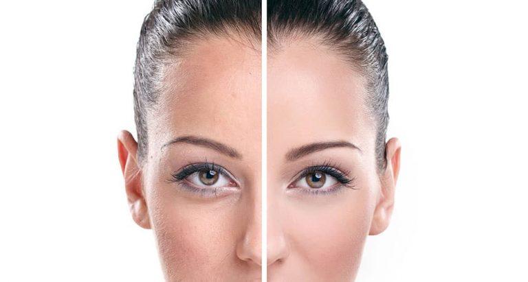 Cryothérapie du visage